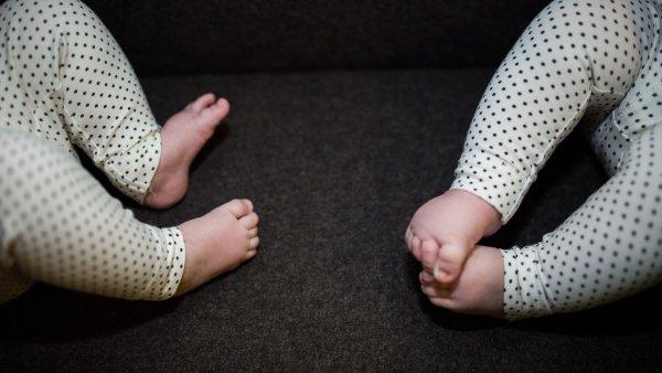 Tvillingar fodda med gemensam kropp